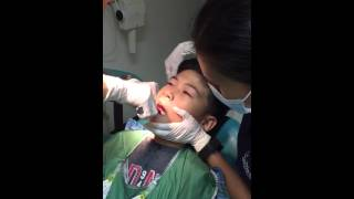Lower molar extraction
