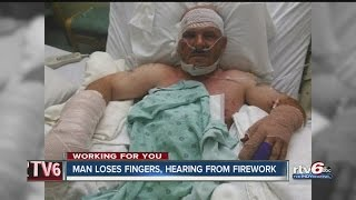 Man loses fingers, hearing from firework