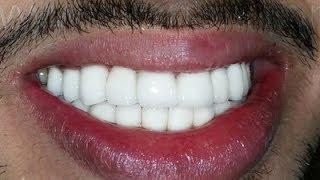 صدق أو لا تصدق تبييض الأسنان خلال 3 دقائق وازالة الاصفرار بمكونين فقط
