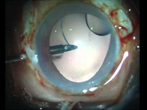Dr. Agarwal s Eye Hospital Closed globe refixation of dislocated IOL with glue.flv