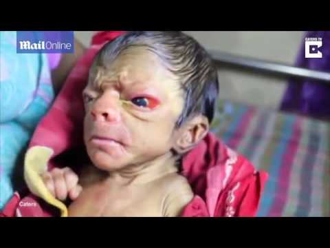 MUST WATCH! A New Born Baby Looking Like An 80 Year Old Man Full Of Back Hair