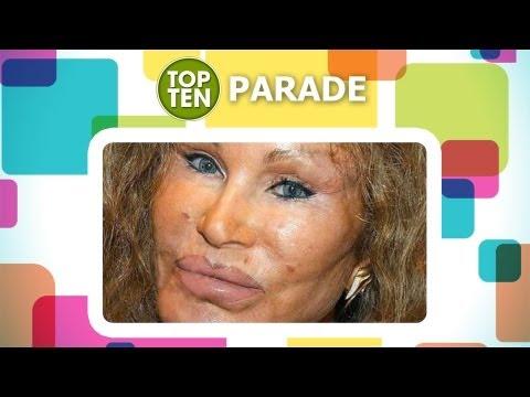 I 10 peggiori disastri della chirurgia plastica