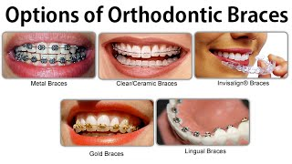 Suitable Options of Orthodontic Braces, Particularly Clear or Invisible Appliances by Dr Mike Mew