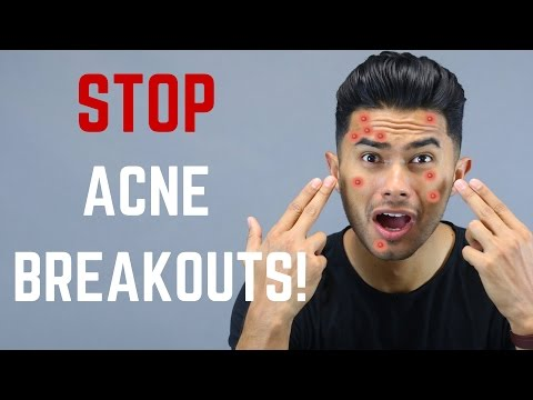 10 Things You Didn't Know Cause Acne