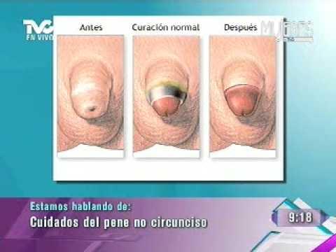 Cuidado del Pene No Circunciso (METVC)