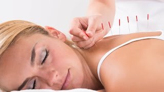 Acupuncture Zhen Fa - Traditional Chinese medicine