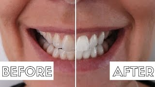 How I Whiten My Teeth At Home | Teeth Whitening How To