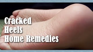 Home Remedies For Cracked Heels by Sonia Goyal
