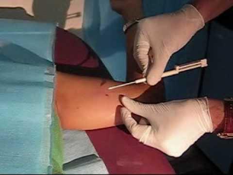técnica de insercion del implante subdérmico anticonceptivo implanon insertion