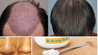 11 Benefits of Baking Soda for Hair, Skin and Body