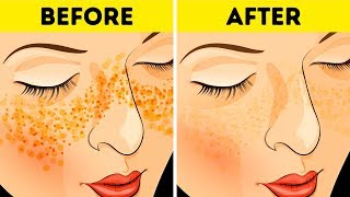 How to Get Rid of Acne Scars and Spots In Just 3 Days