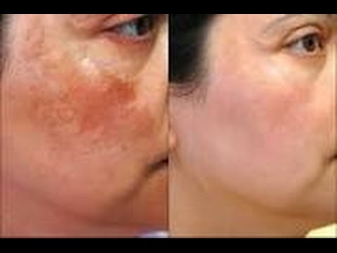 Desi Beauty Tip For Pigmentation,Acne Marks, Dark Spots/ Fair skin and Skin Whitening