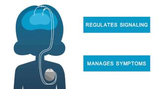 Boston Scientific - Deep Brain Stimulation for Dystonia - Dystonia Sketch Animation - English