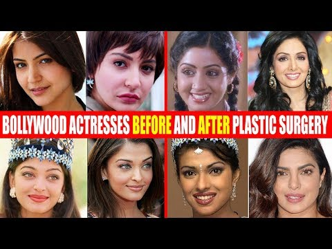 Xxx Mp4 SHOCKING Plastic Surgery Of Bollywood Actresses BEFORE AFTER Sridevi Anushka Aishwarya Priyanka 3gp Sex