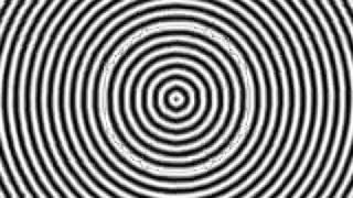 التنويم المغناطيسي