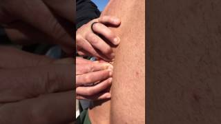 Puss literally shoots out, while popping Matts GIGANTIC Cyst