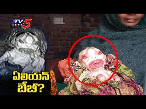 Alien Baby Born In Bihar Woman Gave Birth To Alien Like Baby Unbeleivable Facts TV5 News