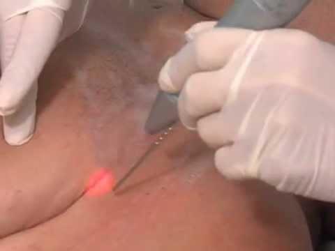 Laser para Eliminación de Estrias
