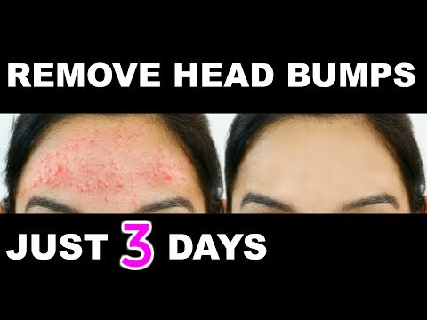 How to get rid of Small Pimples, Head Bumps Fast Naturally | PrettyPriyaTV