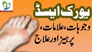 Uric Acid Treatment and Symptoms in Urdu Health and Beauty Tips 2016