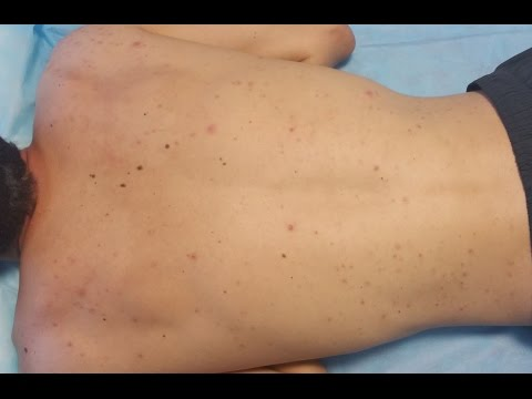 Acne Treatment on the Back (Infected Lesions)
