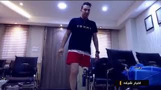 Iran Leg prosthesis surgery, Qaem international hospital, Rasht جراحي پروتز پا بيمارستان قائم رشت