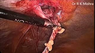 Laparoscopic Repair of Umbilical Hernia HD Video
