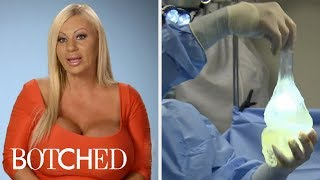Botched And Its Most Intense Breast Implant Surgeries   E!