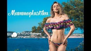 Mammoplastika Dr Rəşad Babayev