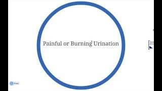 Burning Sensation When Urinating