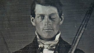 Why Scientists Are Still Fascinated By Phineas Gage