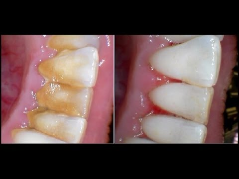 How To Remove Plaque Without Going To The Dentist 2016