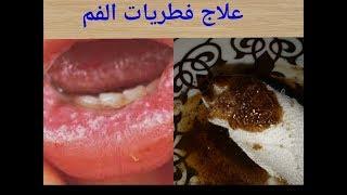 تعانين من فطريات الفم انت او اطفالك و الامها اليك اقوي وصفة رهيبة ستشفي من اول استعمال