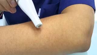 braun face 810 epilateur