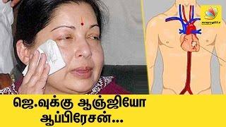 Grave Situation : Jayalalitha given external heart assistance device | Latest Tamil Nadu CM News