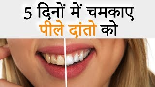Teeth Whitening Home Remedies | Tooth whitening | Dental Care | Home Remedies