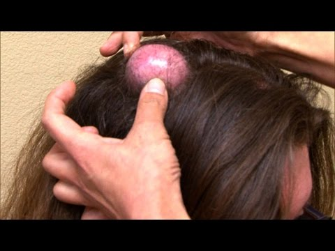 Woman's 20-Year-Old Cyst Finally Gets Popped