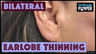 Some People Don't Like Their Earlobes... with Dr Pimple Popper