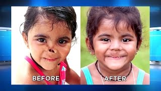 Sisters Incredible Makeover: Roopa's Nose