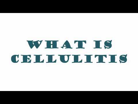 Download What Is Cellulitis? what causes cellulite? Causes, Symptoms & Treatment