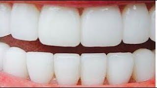 استعملتها لمدة دقيقتين فقط فاصبحت اسناني كاللؤلؤ من الاستخدام الاول تبيض الاسنان بسرعة بدون عناء
