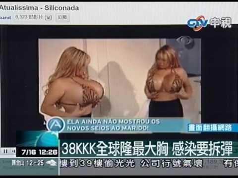 38KKK全球隆最大胸 感染要拆� �