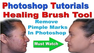 Healing Brush Tool Tutorial In Photoshop - Remove Pimple Marks In Hindi/Urdu