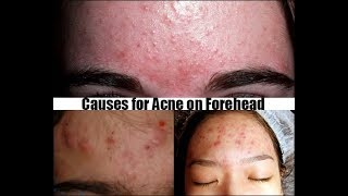 Why do You  have pimples on your forehead W/ CAUSES?