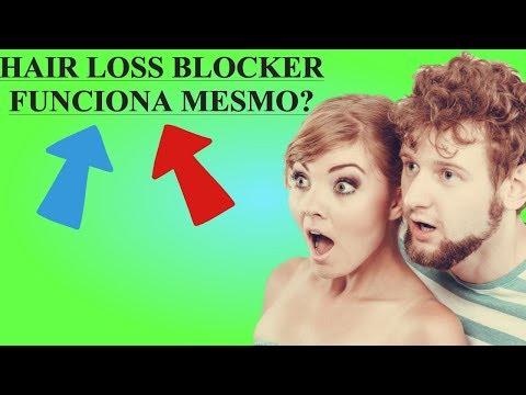 Xxx Mp4 Hair Loss Blocker Funciona Preço Veja Aqui A Minha Sincera Opinião 3gp Sex