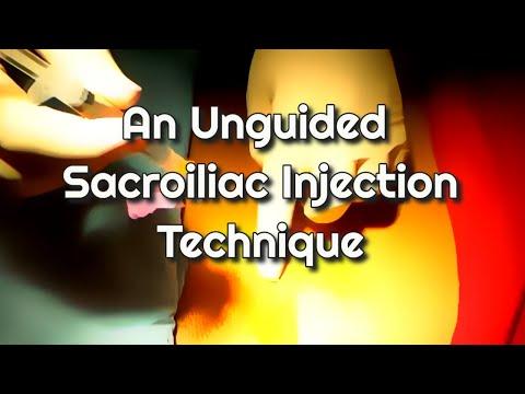 Xxx Mp4 An Unguided Sacroiliac Joint Injection Technique 3gp Sex