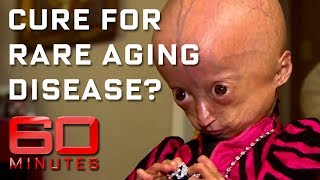 Rare disease that ages children eight times faster than normal    60 Minutes Australia
