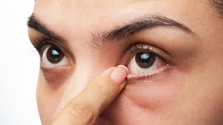 Drs. Rx: Can This Improve Dry Eye?