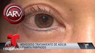 Llegó un novedoso tratamiento para los párpados caídos | Al Rojo Vivo | Telemundo