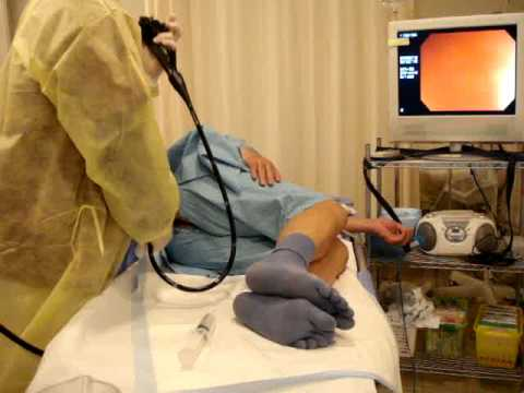 5 minutes Total Colonoscopy;TCS